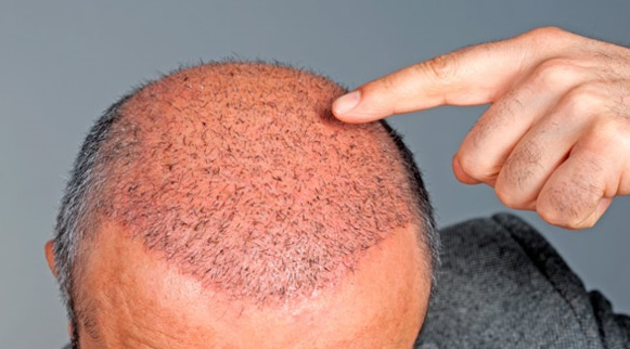 آیا جراحی و کاشت مو توصیه می شوند؟