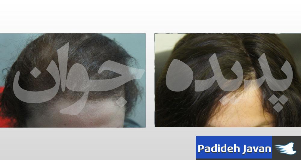 ترمیم موی بانوان