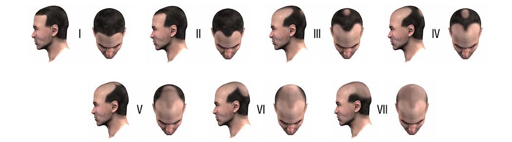 ترمیم موی سر