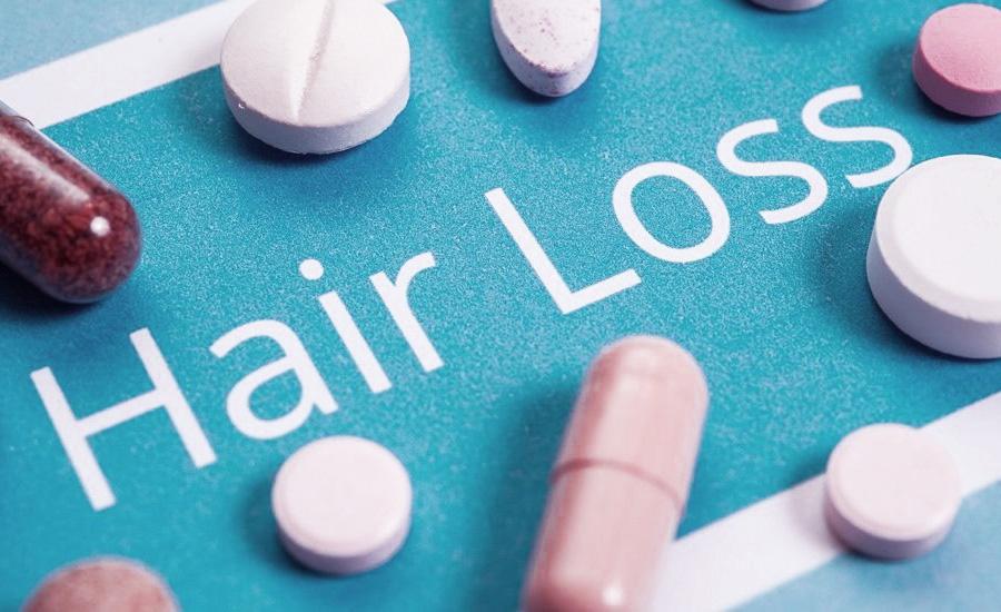 درمان ریزش مو ژنتیکی یا آندروژنیک