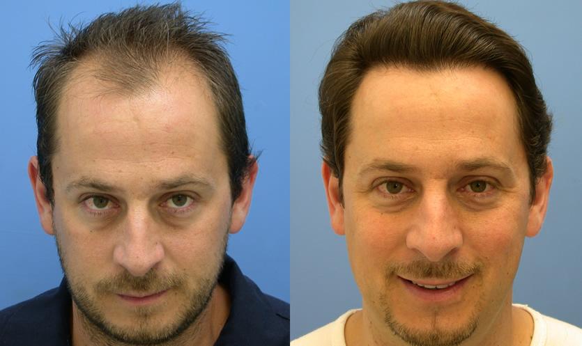 مقایسه کاشت مو به روش FUE وFUT