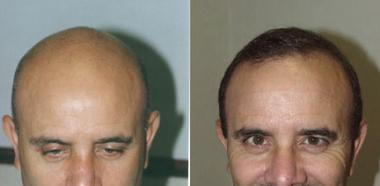 قبل و بعد از 3500 micrografts فولیکولی واحد در 2 روش انجام