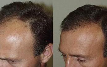 تقویت مو پس از کاشت