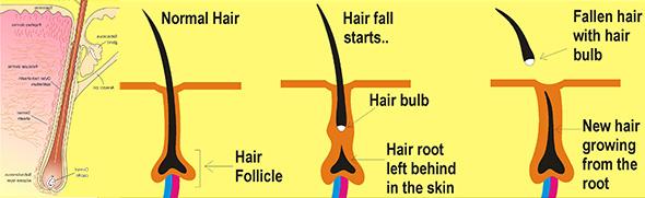 ریشه مو
