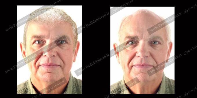 ترمیم مو افراد مسن