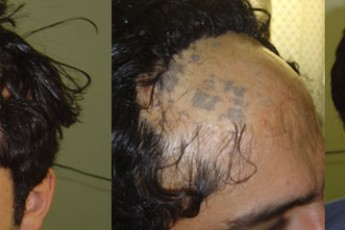 روش ترمیم مو حاصل از سوختگی